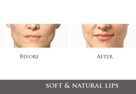 botox-treatments-lips