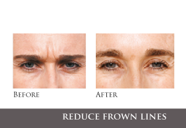 botox-treatments-eye